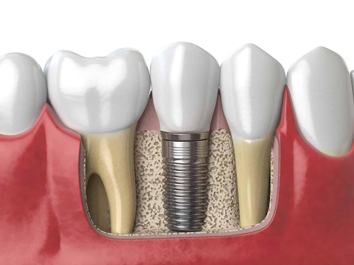 3d illustration showing a dental implant crown and screw fused to the jaw bone alongside natural teeth Keynsham dental care