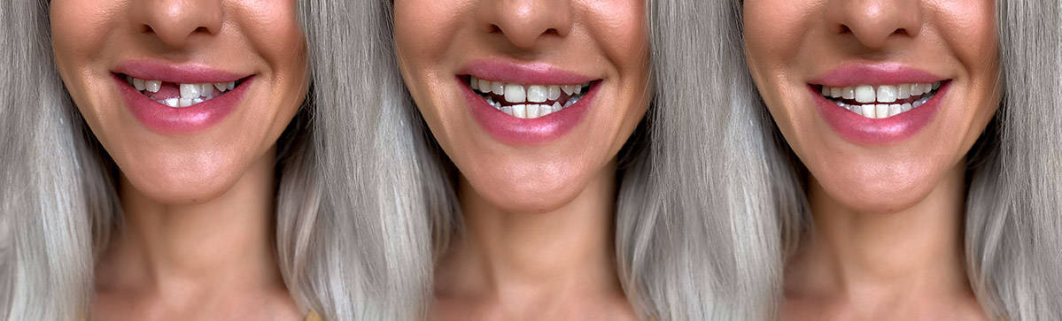 before and after photos of a lady with dental implants and tooth repair