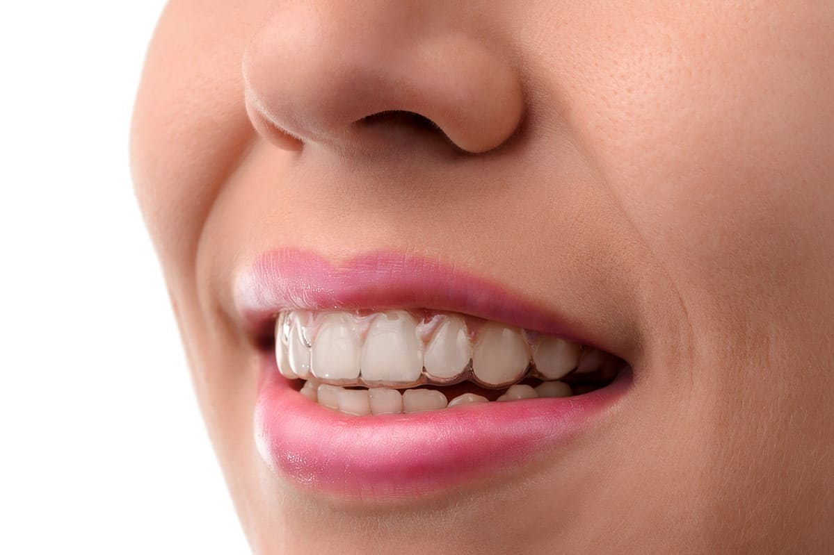 Lady smiling whilst wearing invisible braces