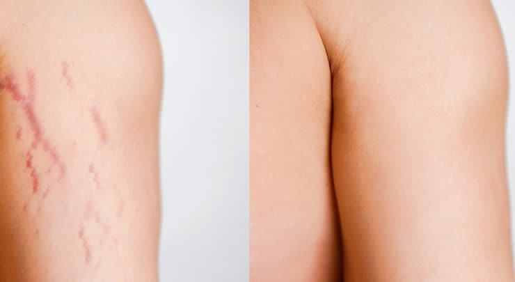 6 Most Effective Ingredients For Healing Stretch Marks