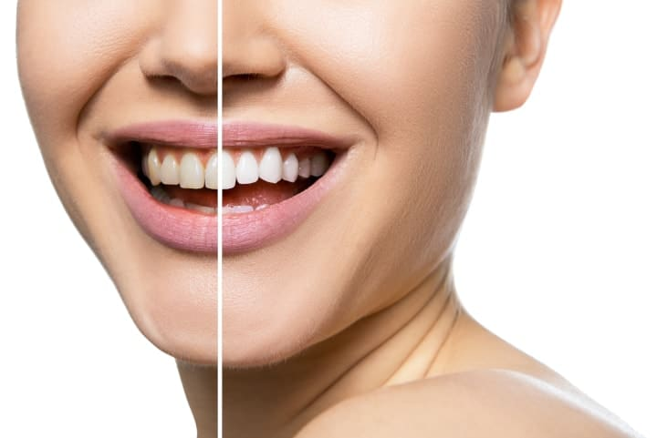 Steps To Safe Teeth Whitening