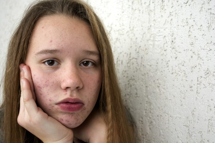 All About Teenage Acne