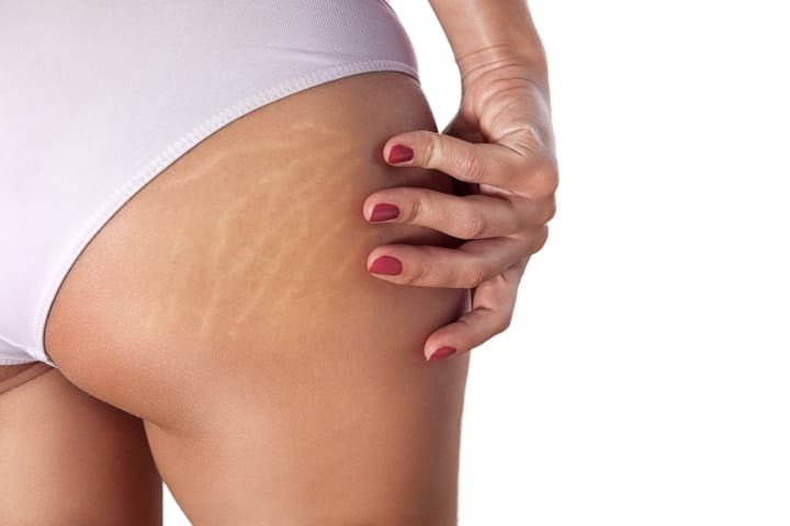 Remove Stretch Marks