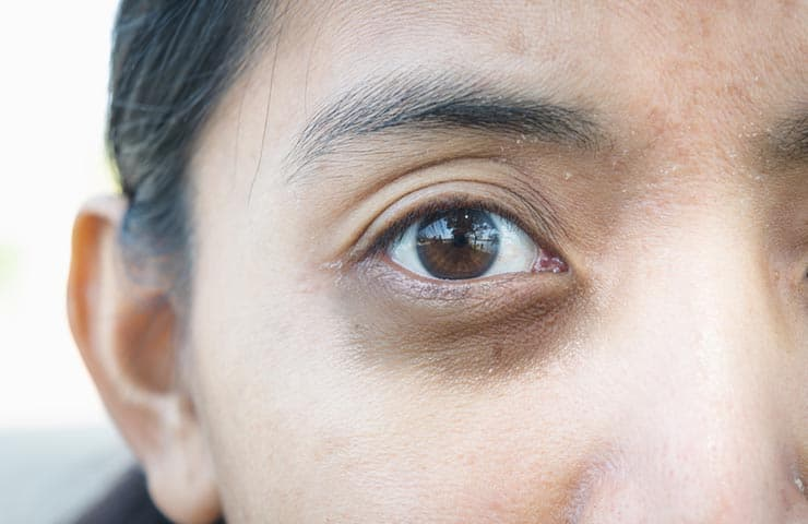 Hyperpigmentation and Dark Circles