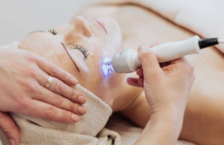 Treating Dark Circles Caused By Hyperpigmentation