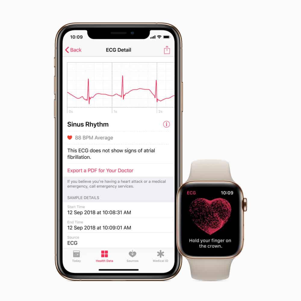 Oznámení o nepravidelném srdečním rytmu k dispozici na Apple Watch