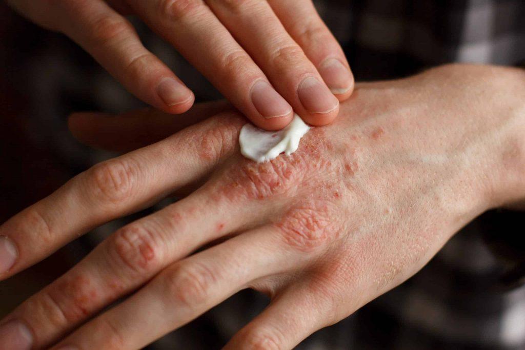 """applying psoriasis eczema treatment cream to dry skin"""