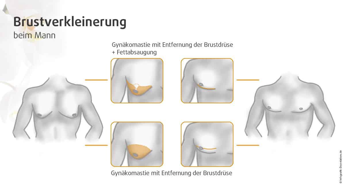 Brustverkleinerung Mann Nürnberg