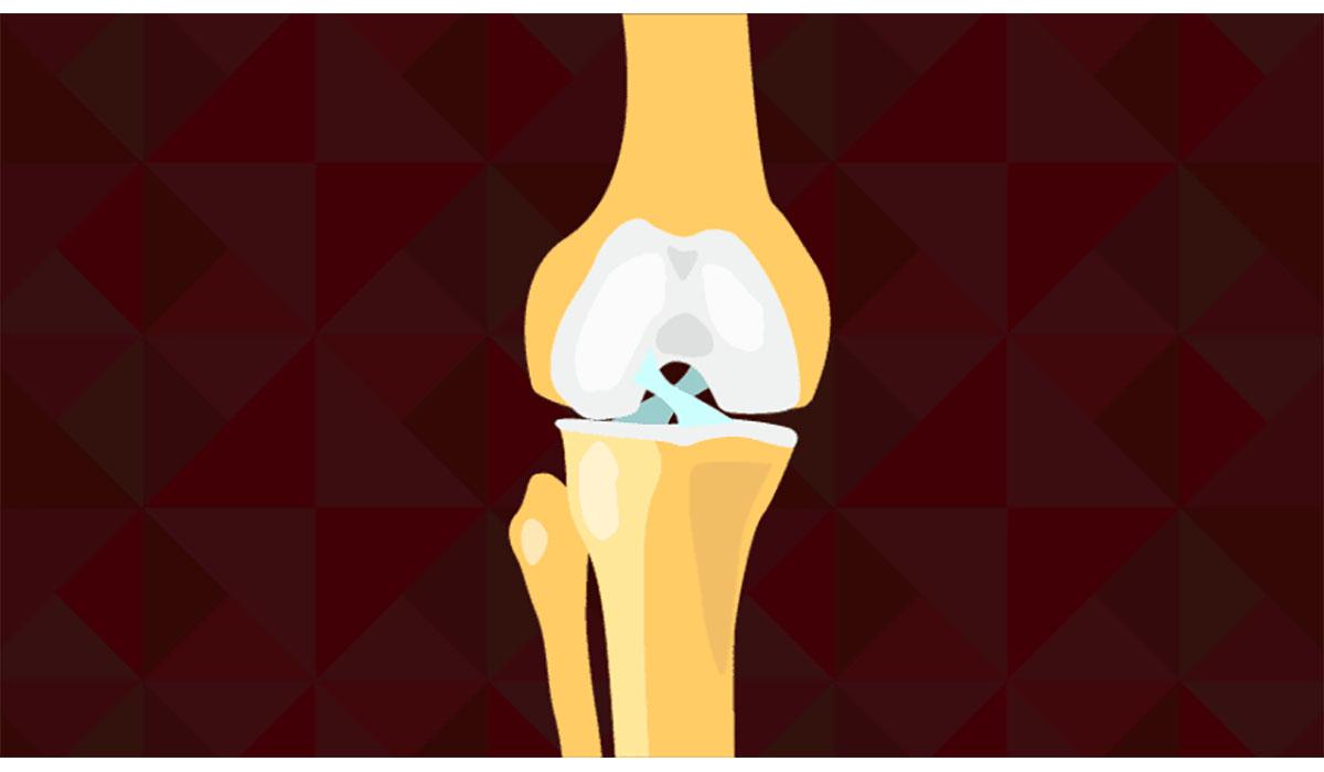 Knee Tear ACL Gatewayextension
