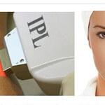 epilare faciala IPL