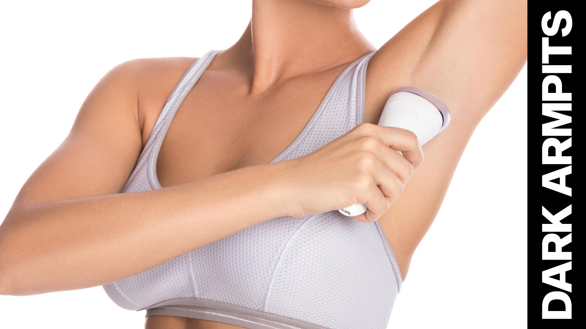 Get rid of dark underarms