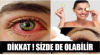 Bunlar Kuru Göz Hastalığı Belirtisi