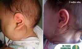 Ի՞նչ անել, եթե Ձեր երեխայի մոտ առկա է հեմանգիոմա