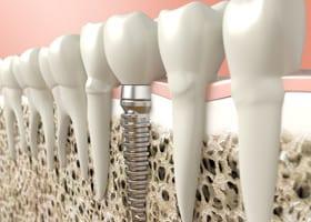 Dental Implants Costa Rica Dental Boutique