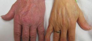 sideroblastik anemi ciltte sarılıklar