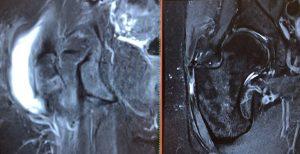 Kernspinbild einer Trochanter Bursitis