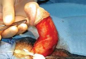 Peyroni ameliyatı sırasında.