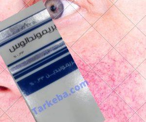 """بريموندالوس جل 0.33% """"Brimondalous"""" لعلاج احمرار الوجه """"Rosacea"""""""