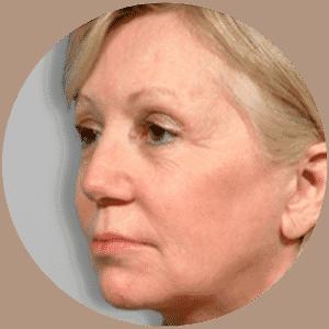 GESICHTSLIFTING Ergebnisse - Global Medical Care® GESICHTSLIFTING