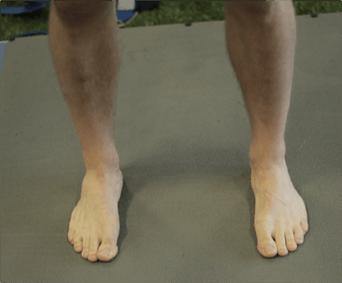 اتجاه القدمين في تمارين القرفصاء