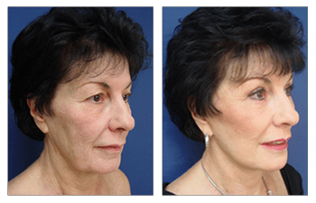 facelift patient 1 front right view