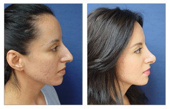 open rhinoplasty patient 2010 right view