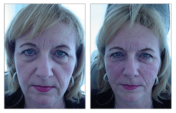 dermal fillers patient 2 before and after