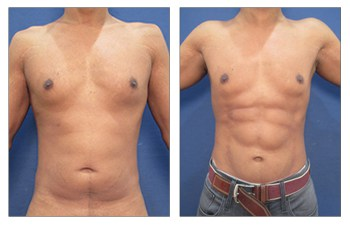 vaser lipo surgery before and after