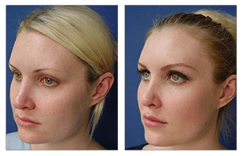 revision rhinoplasty patient 1 front left view