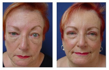 drooping upper eyelid surgery before and after