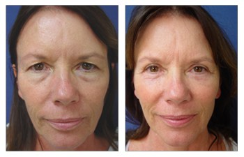 droopy eyelid treatment before and after