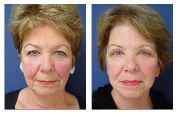 upper blepharoplasty surgery front view