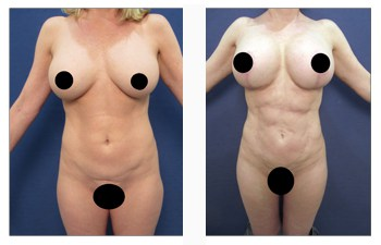 breast lift with implants patient 1 front view
