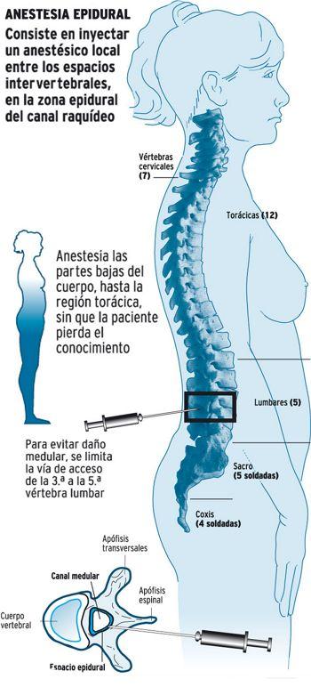 anestesia_epidural