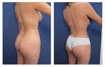 Tilde Curve for waistline definition