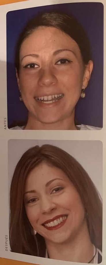 Antes y después de espacios entre dientes