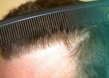 Πώς να αποφύγετε κακές μεταμοσχεύσεις μαλλιών;