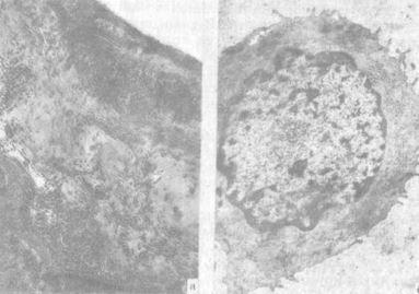 Суставной хрящ в условиях травматического повреждения и применения ацетилсалициловой кислоты