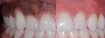 تبييض الأسنان واللثة