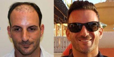 Ergebnisse der Haartransplantation