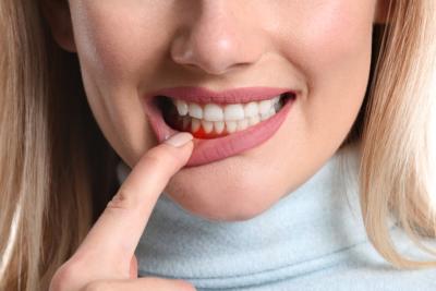 Zahnarzt-Reinickendorf-Ubbelohde-Zahnfleischbehandlung
