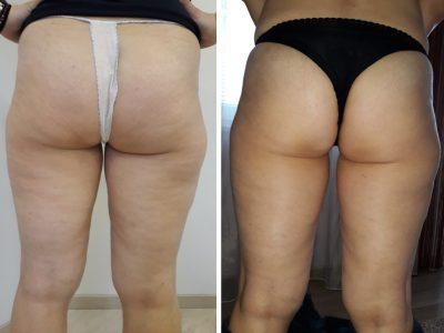 Rezultati pre i nakon samo 2 tretmana