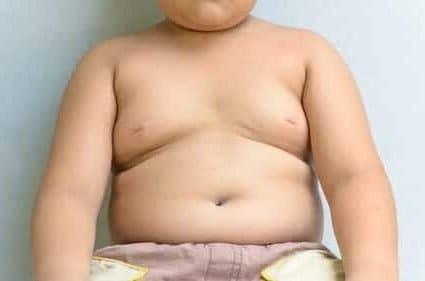 L'obesità infantile va riconosciuta e mai trascurata