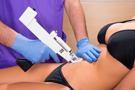 mesoterapia-corporal