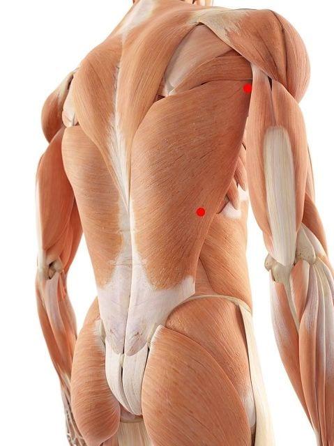 Triggerpunkte im großen Rückenmuskel verursachen starke Schmerzen im mittleren (thorakalen) Rückenbereich sowie ausstrahlende Schmerzen und Empfindungsstörungen auf der Arminnenseite bis zum kleinen Finger.