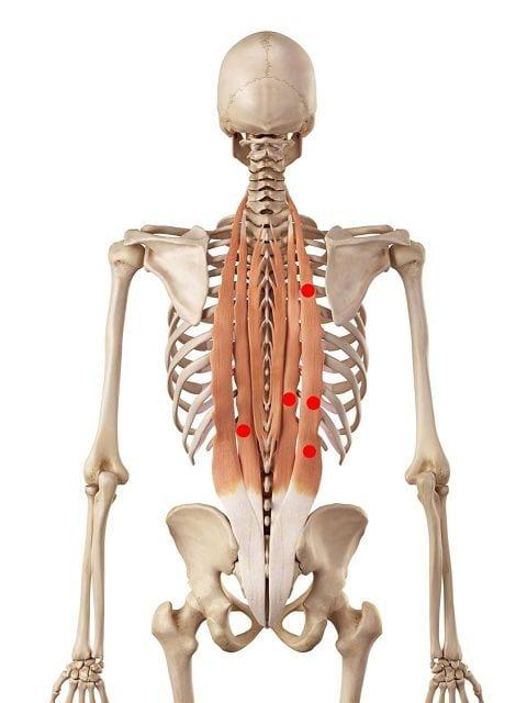 """Triggerpunkte im Darmbein-Rippen Muskel und """"längster Muskel"""" verursachen Rückenschmerzen und Bewegungseinschränkungen der Wirbelsäule."""