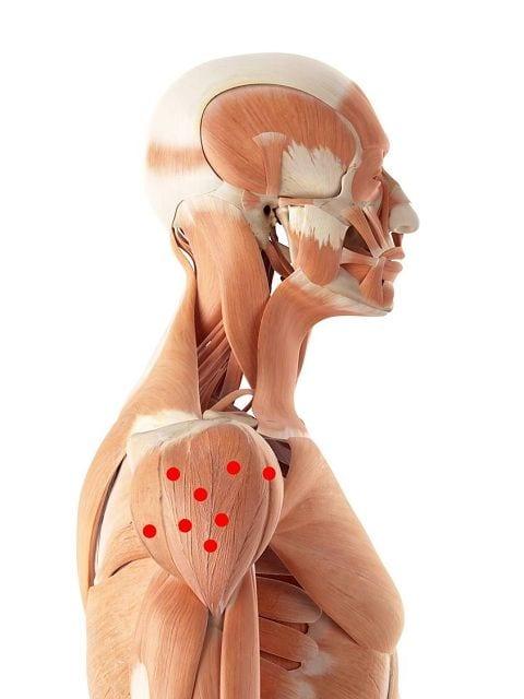 Die Triggerpunkte im Deltamuskel verursachen einen Bewegungsschmerz des Armes jedoch kein Ruheschmerz.