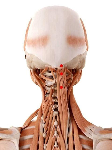 Triigerpunkte im Halbdornmuskel des Kopfes (lat. semispinalis capitis) können Kopf und Nackenschmerzen sowie ein Kirbbeln und Taubheit am Hinterkopf auslösen