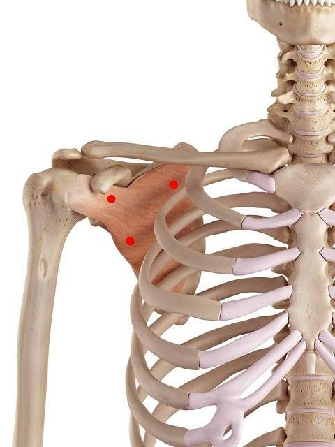 Triggerpunkte im Unterschulterblattmuskel verursachen Schulterschmerzen bei Bewegung und in Ruhe. Ebenfalls können zu neurologischen Ausfällen im Arm führen. Außerdem führen sie zu Bewegungseinschränkungen in der Schulter und Arm.