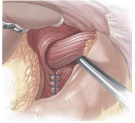 Cirugía esófago-gástrica en Córdoba